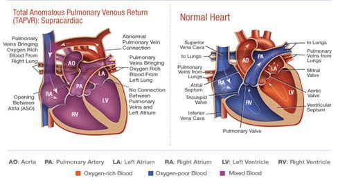 تفاوت قلب طبیعی و قلب TAPVR