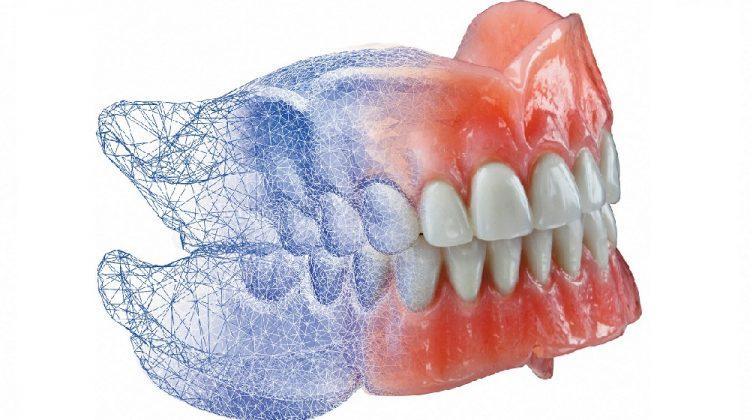 پرینت ۳ بعدی پروتز دندان