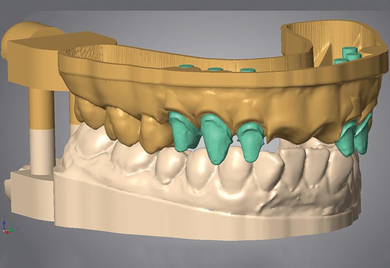 پرینت سه بعدی ایمپلنت دندانی