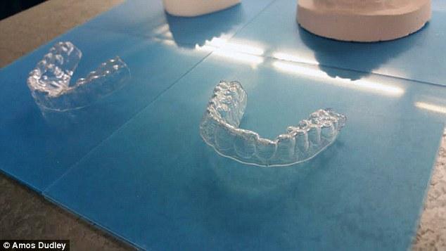 پرینت سه بعدی براکت دندان
