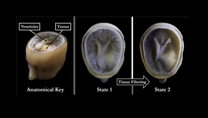 پرینت سه بعدی مدل مغز انسان در کمتر از ۱ ساعت