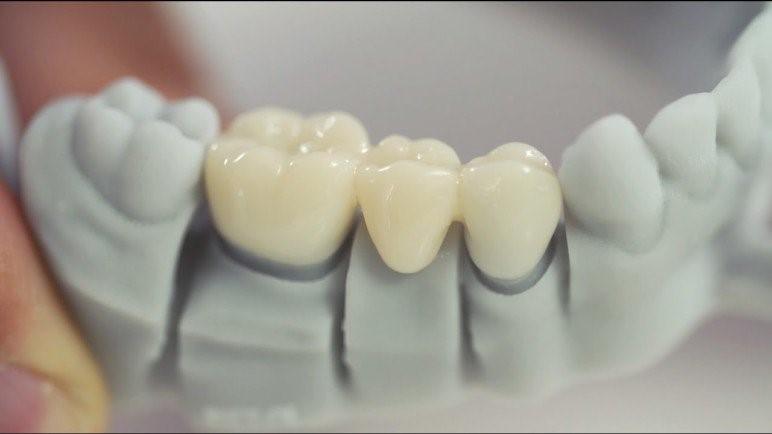 پرینت سه بعدی تاج دندان