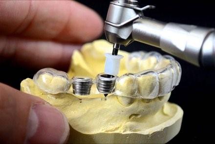 پرینت سه بعدی راهنماهای جراحی