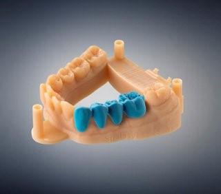 پرینت سه بعدی مدل در دندانپزشکی