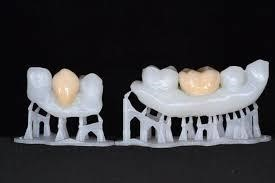 پرینت سه بعدی در دندانپزشکی