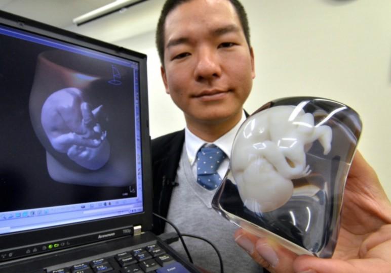 پرینت سه بعدی و آینده علم پزشکی