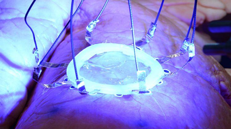 پرینت سه بعدی روی عضوهای در حال حرکت بدن