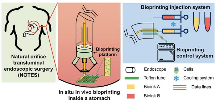 درمان مؤثرتر زخم معده با استفاده از تکنولوژی پرینت سه بعدی زیستی