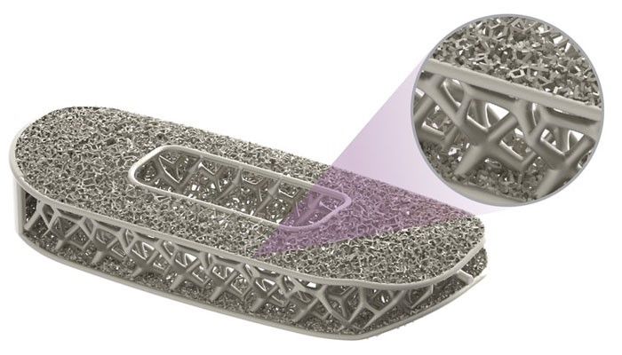 کاهش وزن ایمپلنت های پزشکی با استفاده از روش بهینه سازی توپولوژی