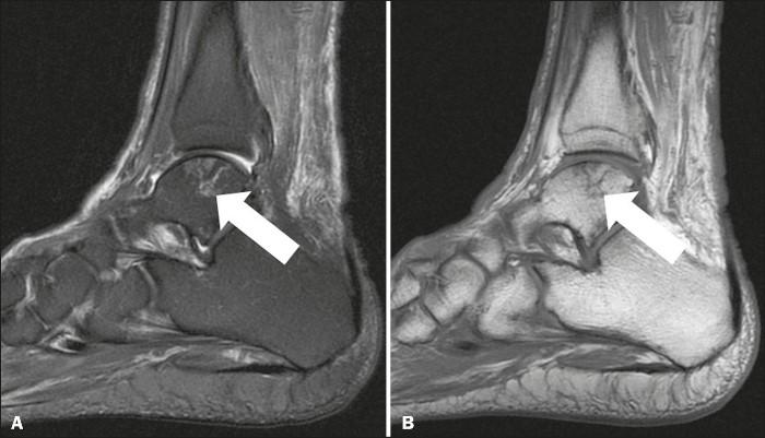 ساخت نخستین ایمپلنت مچ پا پرینت سه بعدی شده مورد تأیید FDA